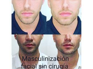 Armonización facial - CominoEstetics