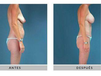 Cirugía estética-630144