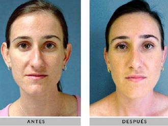 Cirugía estética-630148