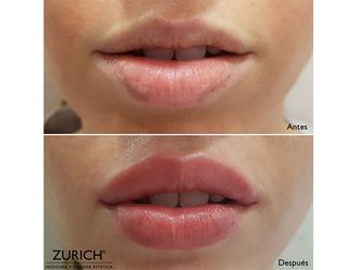 Aumento labios - 634754