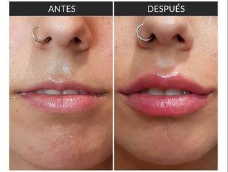 Aumento labios-639989
