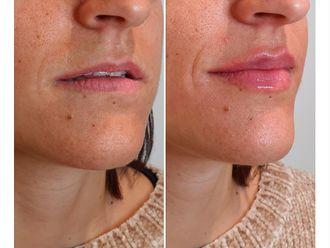 Aumento labios-645317