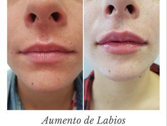 Aumento labios-645324