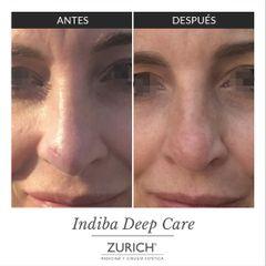 Antes y Después Indiba Deep Care Facial - Eliminación cicatriz