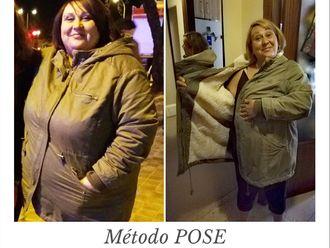 POSE Reducción de estómago - 645328