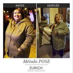 Antes y después · Método POSE