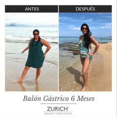 Antes y después · Balón Gástrico · 6 meses