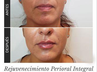 Rejuvenecimiento facial-645330