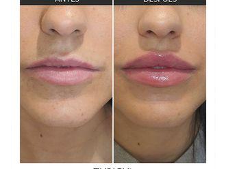 Aumento labios-649636