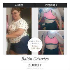 Antes y después Balón Gástrico 6 meses - Clínicas Zurich