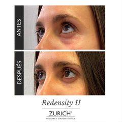 Eliminación de ojeras - Clínicas Zurich