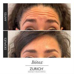 Bótox  - Clínicas Zurich