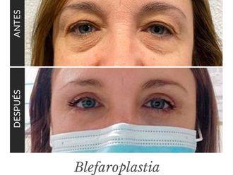 Blefaroplastia - 791794
