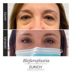 Blefaroplastia - Clínicas Zurich