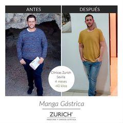 Manga gástrica - Clínicas Zurich