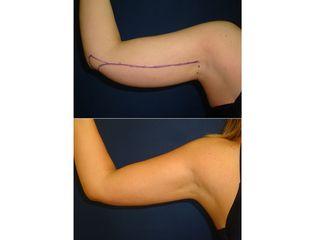 Antes y después Hidrolipoclasia brazo derecho