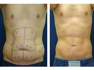 Antes y después Hidrolipoclasia abdomen hombre