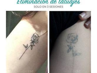Eliminación de tatuajes - 788889