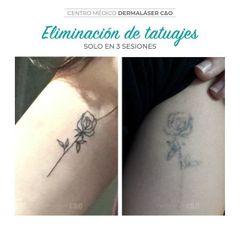 Eliminación de tatuajes - Dermaláser C&O