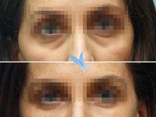 Tratamiento para eliminar ojeras Eyes Repair