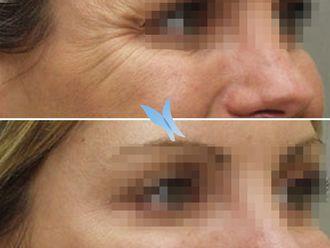 Medicina estética-596300