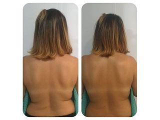 Antes y después Diatermia