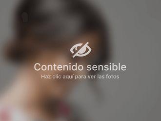 Radiofrecuencia facial - 648066