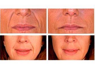 Antes y después Tratamientos antiarrugas