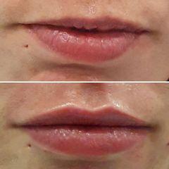 Aumento de labios - Dr. George Beridze