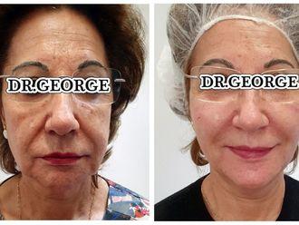 Rejuvenecimiento facial-738801
