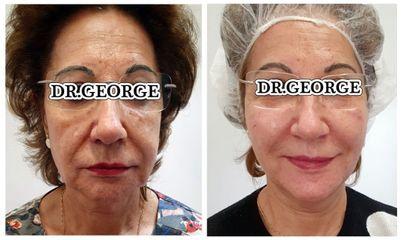 Rejuvenecimiento facial - Dr. George Beridze