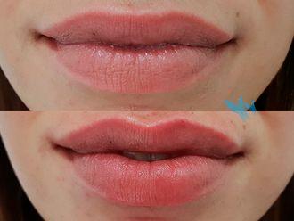 Aumento labios - 629762