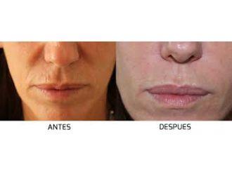Rellenos faciales-554482