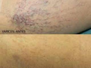 antes y después varices