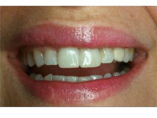 Dentadora