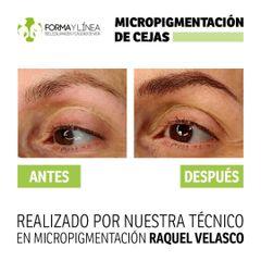 Micropigmentación - Forma Y Linea Ciudad Real