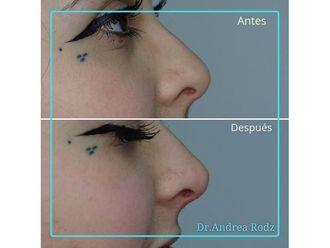 Medicina estética-649122