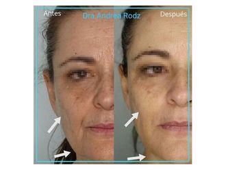 Rejuvenecimiento facial-649128