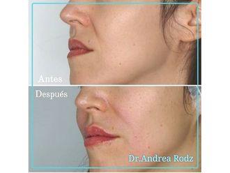 Rejuvenecimiento facial-649132