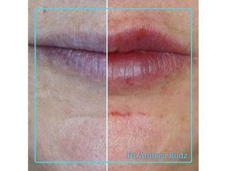 Aumento labios-649135