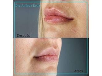 Aumento labios-649139