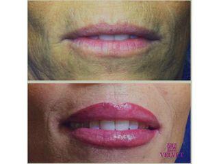 resultados micropigmentación