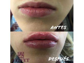 Aumento labios-632205