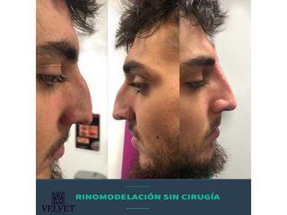 Antes y después Rinomodelación