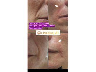 Rejuvenecimiento facial-636303