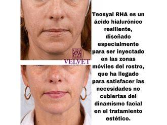 Rejuvenecimiento facial-636304