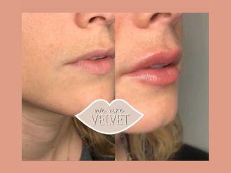 Aumento labios - 636419