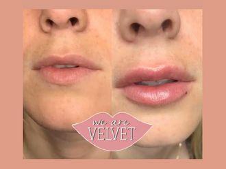 Aumento labios - 636420