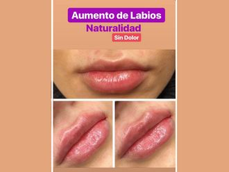 Aumento labios - 636421