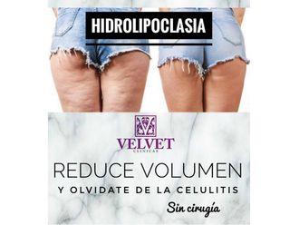 Celulitis - 636423